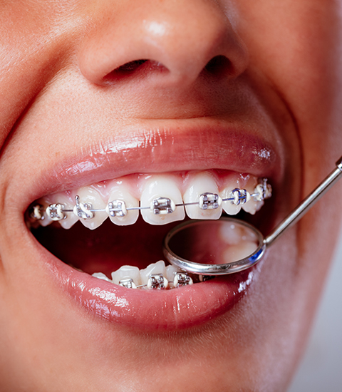 Soins dentaires - Orthodontie
